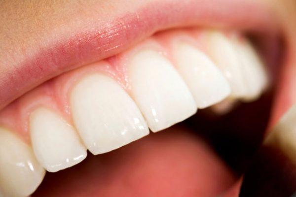 Una buena higiene dental puede prevenir enfermedades