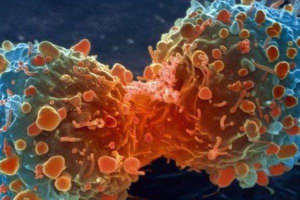 Nuevo medicamento contra el cáncer de mama aumenta tasas de supervivencia