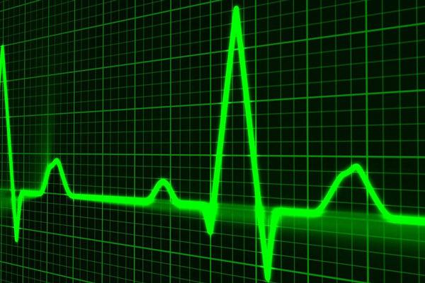 Investigadores chilenos descubren relación entre inhibir sistema nervioso y sobrevivir a cardiopatías