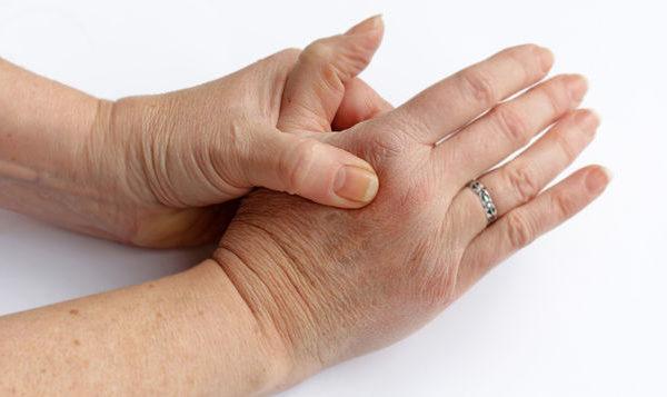 La Artritis Reumatoide aumenta como causa de ausentismo laboral