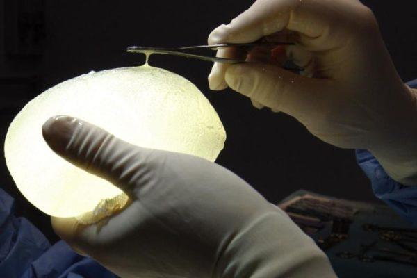 600 venezolanas serán indemnizadas por polémico caso de las prótesis PIP
